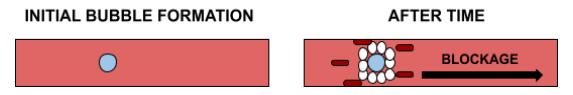 Inert Gas Bubble Blockage Diagram